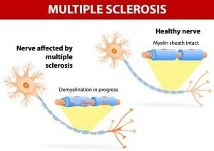 Multiple Sclerosis Treatment Chandler Az