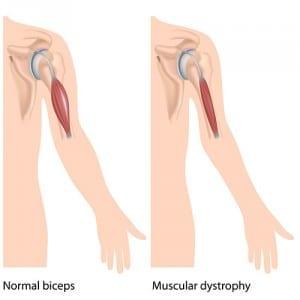 Musculoskeletal disorders- myopathy
