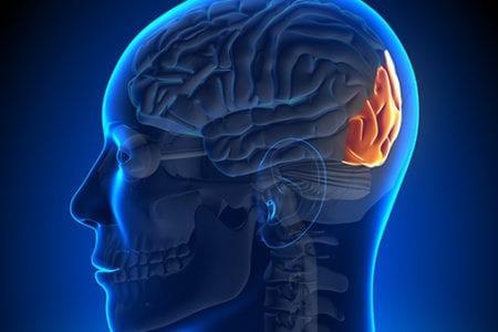 Sclerosis Illustration - Cranial Nerve